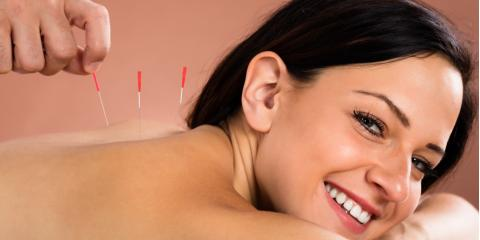 3 Things to Expect at Your First Acupuncture Treatment, Bullhead City, Arizona