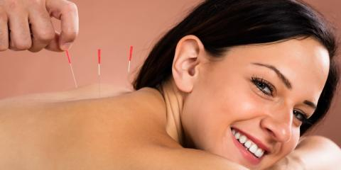 4 Surprising Issues Acupuncture Can Help With, West Chester, Ohio