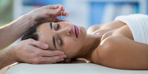 The Amazing Benefits of Acupuncture for Anxiety, Reno Southeast, Nevada