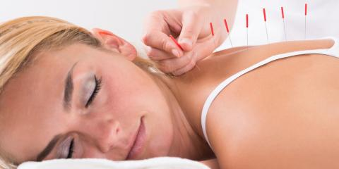 3 Aftercare Tips Following an Acupuncture Treatment, North Hempstead, New York