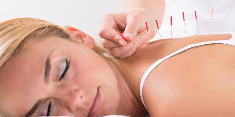 3 Surprising Benefits of Acupuncture, Bullhead City, Arizona