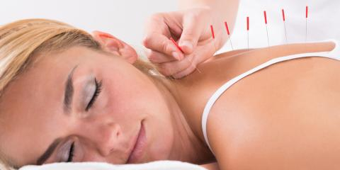 4 Common Questions About Acupuncture, Forest Park, Ohio