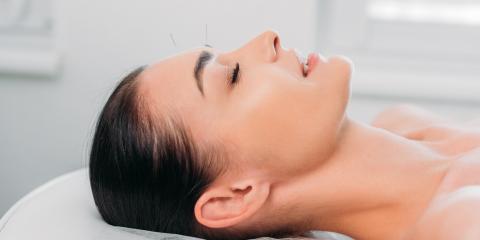 5 Impressive Health Benefits of Acupuncture, Hay Creek, Minnesota