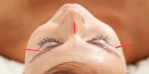 What to Expect From Your First Acupuncture Treatment, North Hempstead, New York