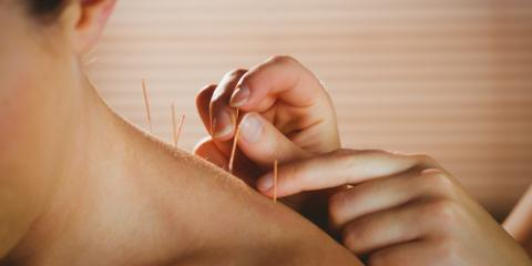 How Acupuncture Relieves Postsurgery Pain, Nyack, New York