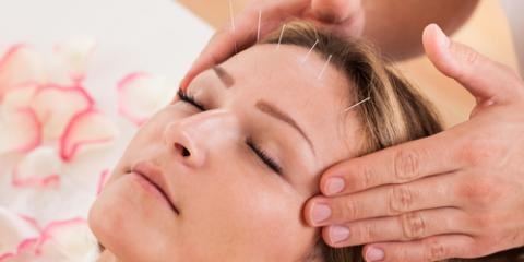 How Does Facial Rejuvenation Acupuncture Compare to Botox®?, West Hartford, Connecticut