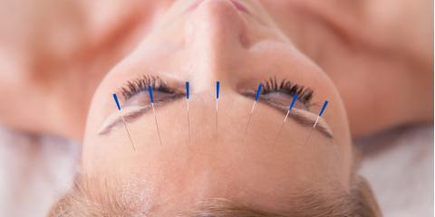 Is Cosmetic Acupuncture the New Facelift? , Covington, Kentucky