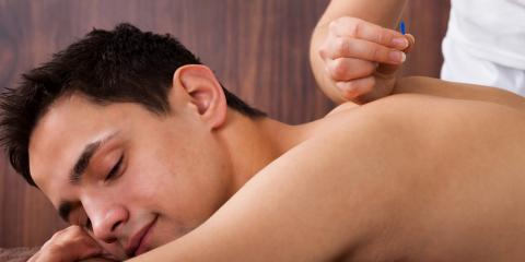 What to Know About Acupuncture for Pinched Nerves, Nyack, New York