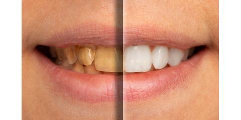 3 Everyday Habits That Stain Your Teeth, Prairie du Chien, Wisconsin