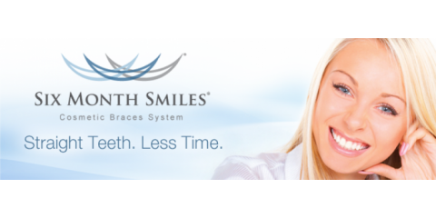 Why You Need Six Month Smiles Adult Braces From Morrell Dental, Anchorage, Alaska