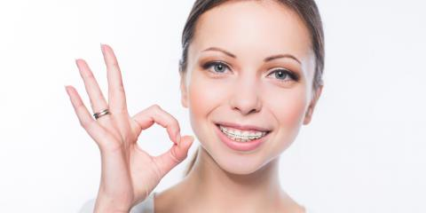 3 Reasons Adult Braces Have Become Increasingly Popular, Potomac, Maryland