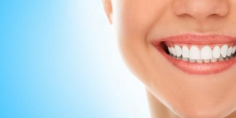 5 Great Reasons to Consider Cosmetic Dentistry Treatment, Ewa, Hawaii