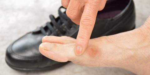 Frequently Asked Questions About Bunions, Dardenne Prairie, Missouri