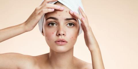 5 Acne-Prone Parts of the Body & How to Prevent Pimples, Anchorage, Alaska