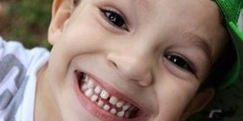 Toothaches & Tragedy: The Necessity of an Emergency Children's Dentist, Anchorage, Alaska