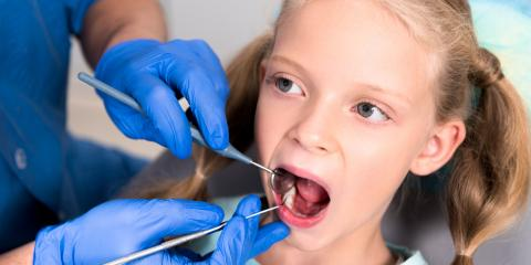 What Happens When You Delay Teeth Cleaning?, Anchorage, Alaska