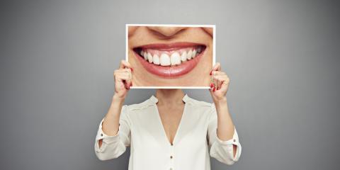 A Farmington Dentist Answers 5 FAQ's About Teeth Whitening, Farmington, New York