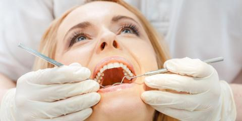 Family Dentist Shares Everything You Need to Know About Plaque, Anchorage, Alaska