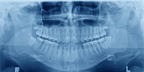Everything You Need to Know About Panoramic Dental X-Rays, Anchorage, Alaska