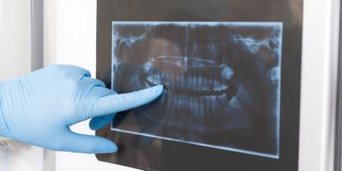 How Dental X-Rays Help Oral Surgeons, Anchorage, Alaska