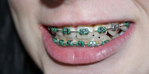 Need Orthodontics? 4 Trains to Look for in an Anchorage Orthodontist, Anchorage, Alaska