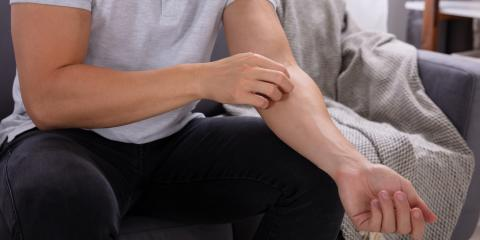 3 Common Causes of Dry Skin, Anchorage, Alaska