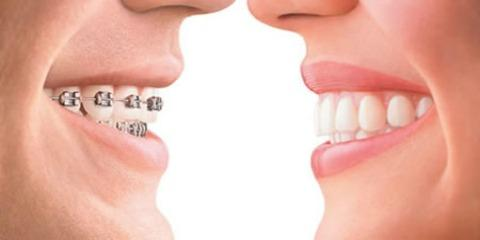 Anchorage Orthodontic Associates Debunk Common Braces Myths, Anchorage, Alaska