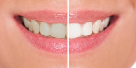 Two Teeth Whitening Treatment Options from Local Family Dentists, Anchorage, Alaska