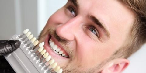 Commonly Asked Questions About Cosmetic Dentistry, Andalusia, Alabama