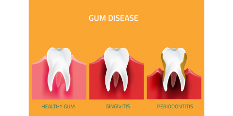 What Is Gingivitis? What Causes Gingivitis?, North Branch, Minnesota