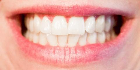 Elko's Leading Dentist Recommends These Foods to Help Whiten Teeth , Elko, Nevada