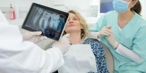 What to Expect When Receiving a Dental Crown, Archdale, North Carolina