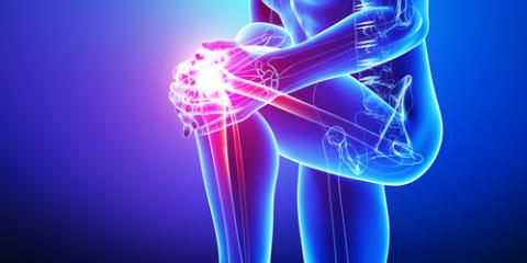 Arthritis Prevention Tips From KY's Top Orthopaedic Surgeons, Lexington-Fayette, Kentucky