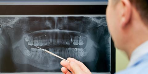 Asch Dental Explains When to Get Dental X-Rays, Springdale, Ohio