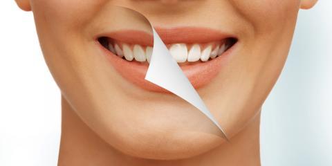 5 Benefits of Professional Teeth Whitening Over Home Kits, Ash Flat, Arkansas