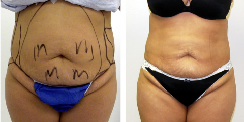 4 FAQs About Liposuction, Shaker Heights, Ohio