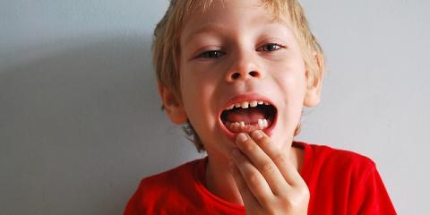 Eagle River's Best Dentist Suggest 5 Steps to Save a Knocked-Out Tooth , Anchorage, Alaska