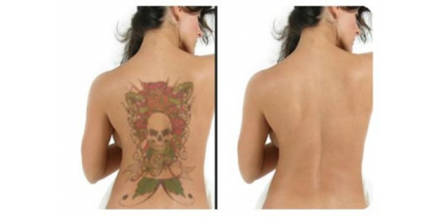 Important Facts About Laser Removal of Color Tattoos, Tuckahoe, Virginia