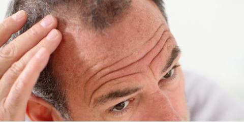 Reverse Hair Loss With Gentle Scalp Treatments From Gilda's Hair Studio, Fairfield, Ohio
