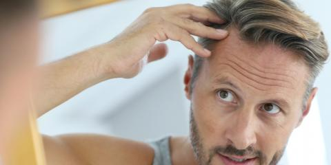 3 Types of Hair Loss Explained, Rochester, New York