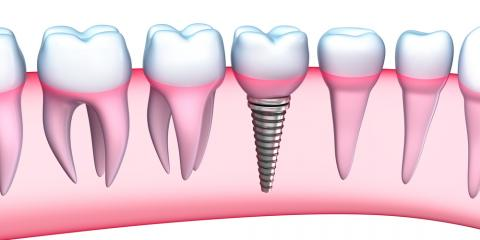 """Dental Implants: What You Should Know About This """"Third Set"""" of Teeth, Baraboo, Wisconsin"""