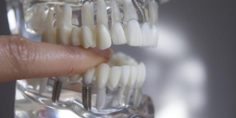 Top 5 Reasons to Choose Dental Implants, Baraboo, Wisconsin