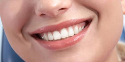 5 Cosmetic Dentistry Procedures to Brighten Your Smile, Superior, Nebraska