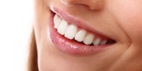 Recovery Times After a Visit to the Cosmetic Dentist, Woodbury, New York