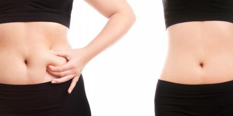 Fat Reduction - NEW FDA Approved BTL Vanquish-It's Permanent, Beaverton-Hillsboro, Oregon