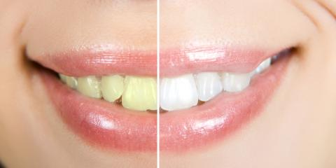 Anchorage's Best Cosmetic Dentist Shares 3 Post-Whitening Care Tips, Anchorage, Alaska