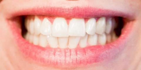 Scottsboro's Best Dentists Share 5 Tips for Great Gum Care, Scottsboro, Alabama