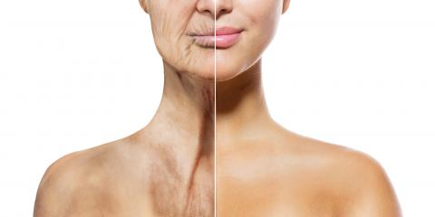Loose Neck Skin Treatment Options, Milford, Connecticut