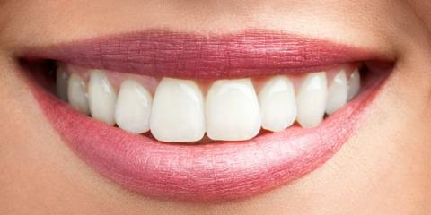 Embarrassed by Your Smile? One of These Cosmetic Dentistry Procedures Could Be for You, Texarkana, Arkansas