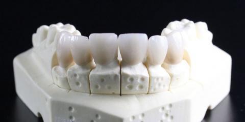 5 Ways Dental Implants Will Benefit You, Fishersville, Virginia